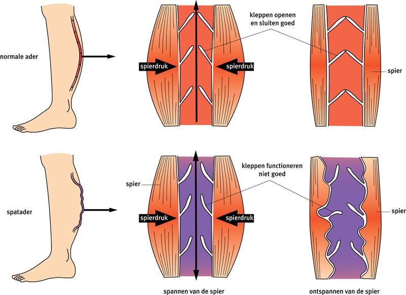 kramp in bovenbeen oorzaak