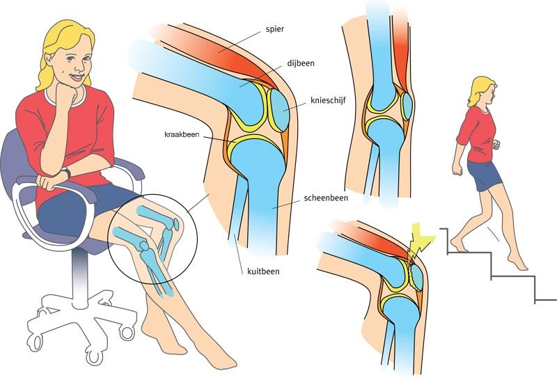 knie spieren versterken